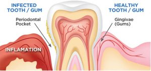 gum_disease2