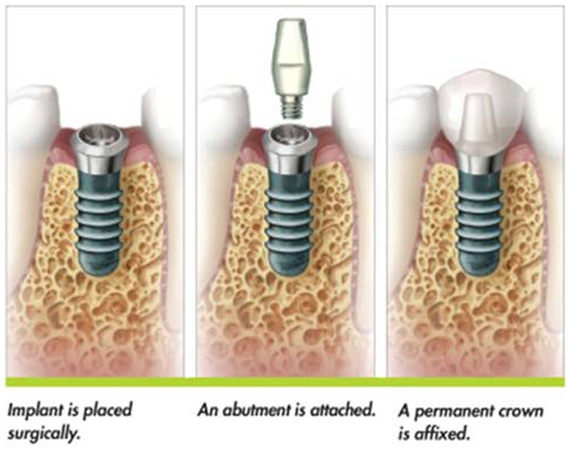 dental-implant-in-ahmedabad